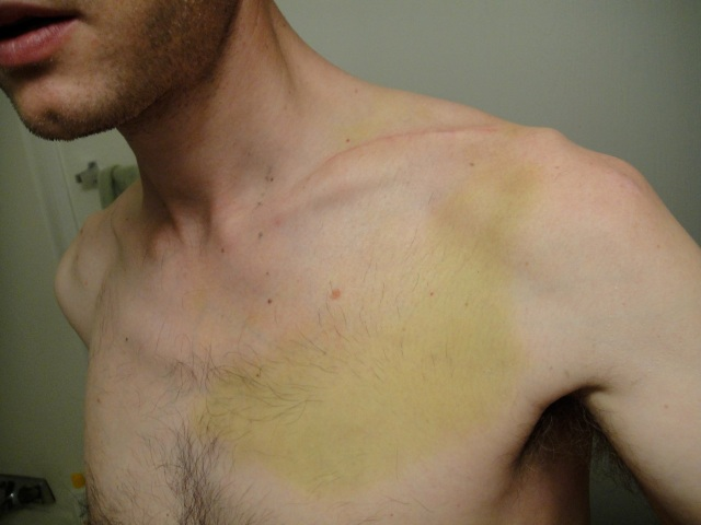 3 weeks post clavicle ORIF